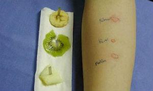 Chẩn đoán và xét nghiệm bệnh dị ứng thực phẩm